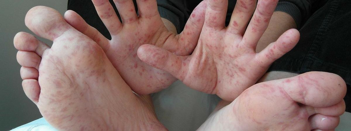 hand-voet-en-mondziekte(1)