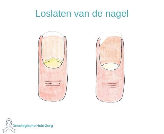 4. Loslaten van de nagels