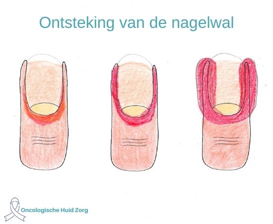 8. Ontsteking van de nagelwallen van de nagel
