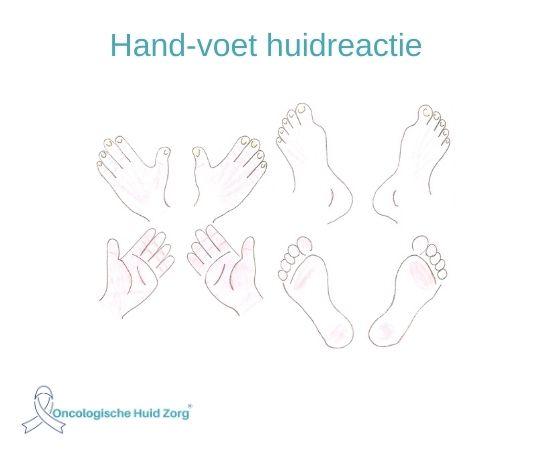 hand-voet huidreactie