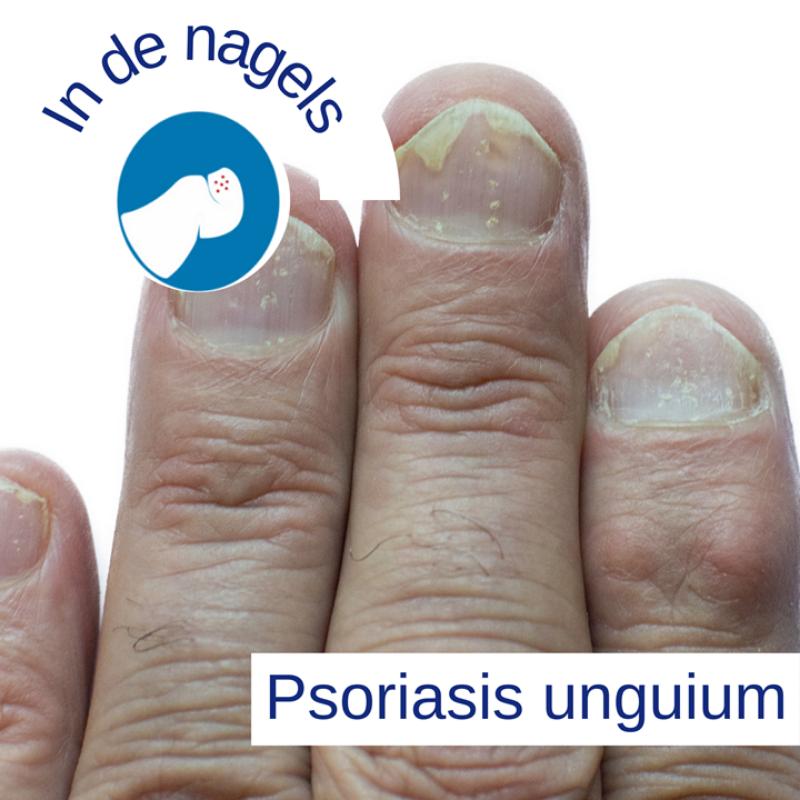 Psoriasis voor OnlDerm (10)
