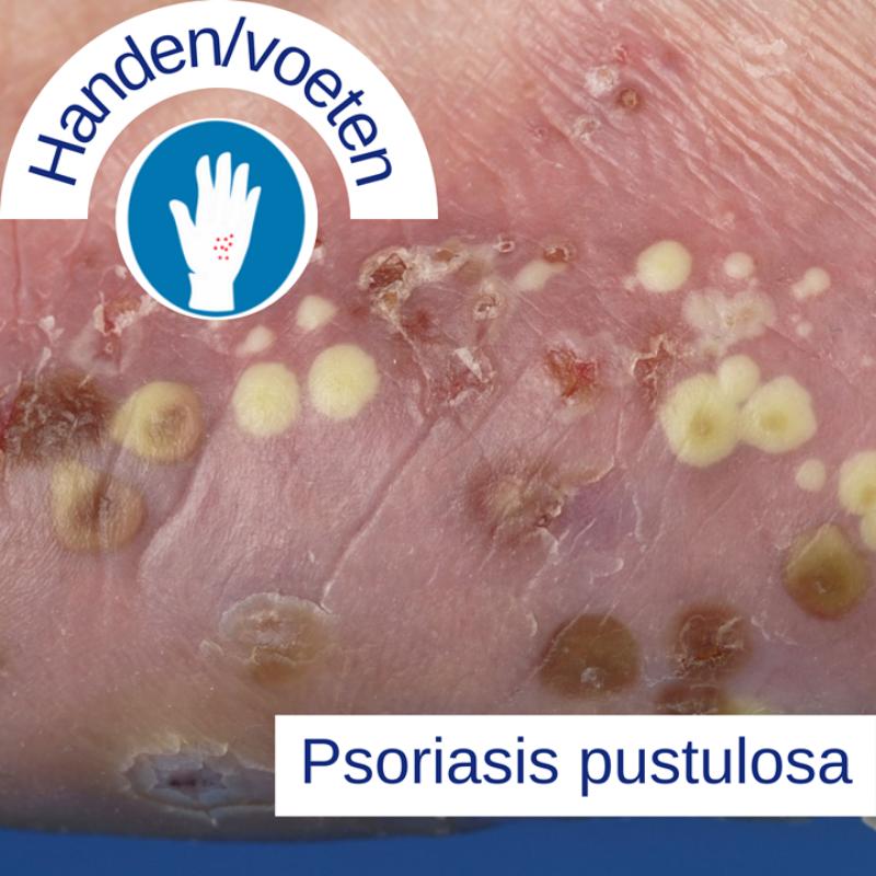Psoriasis voor OnlDerm (12)