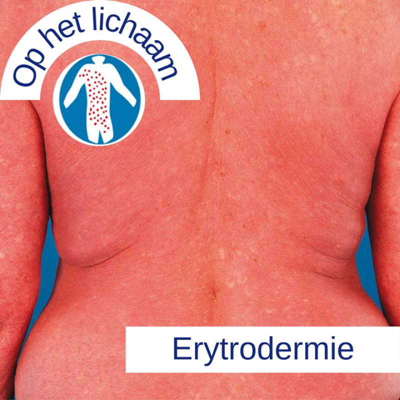 Psoriasis voor OnlDerm (13)