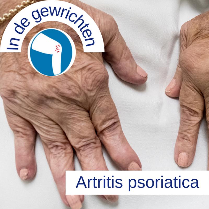Psoriasis voor OnlDerm (14)