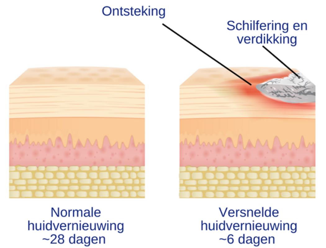 Psoriasis voor OnlDerm (2)
