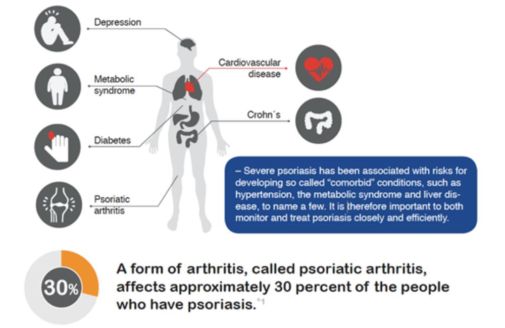 Psoriasis voor OnlDerm (24)