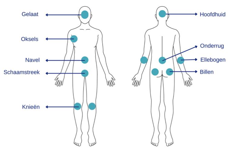 Psoriasis voor OnlDerm (6)
