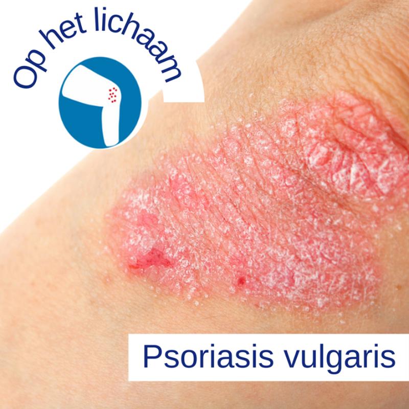 Psoriasis voor OnlDerm (7)