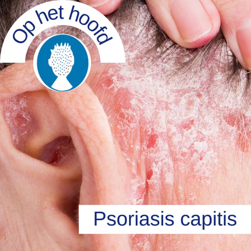 Psoriasis voor OnlDerm (8)